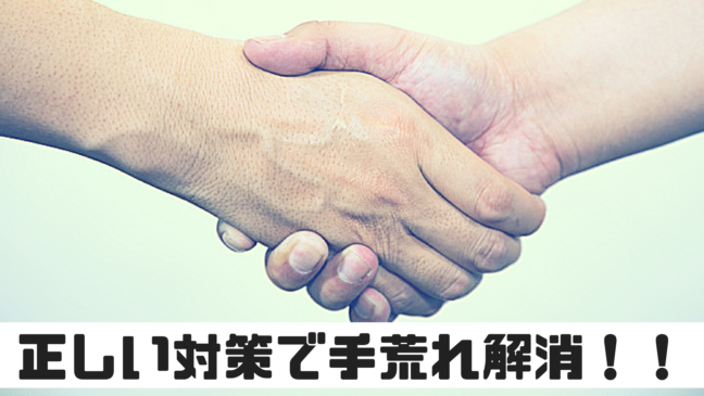 手荒れ 対策 原因 かゆみ 湿疹 洗剤 治らない 握手をしている 背景が淡い緑 お互い右手