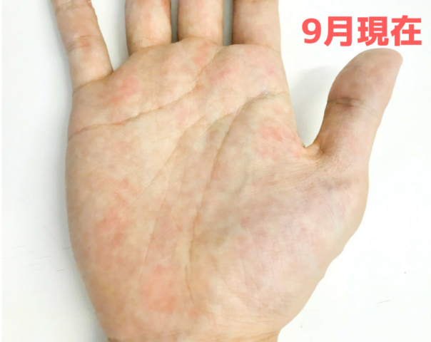 手相 変化 期間 周期 左手 写真 運命 現在の手のひら 赤い文字 血行が悪そう
